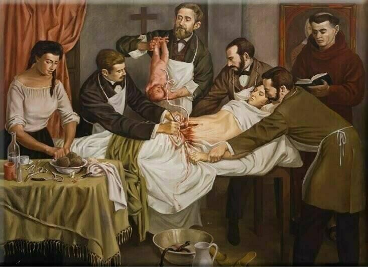 Кесарево сечение: история открытия такого вида родов, развитие в акушерстве, как проводили операцию при болезни, первое кесарево