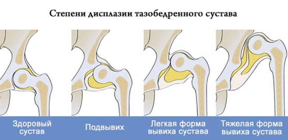 Норма тазобедренного сустава у грудничков, признаки и лечение дисплазии