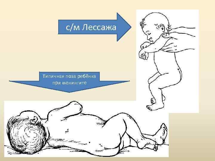 Менингококковый менингит у детей