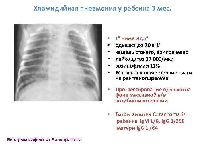 Первые симптомы пневмонии у детей 1, 2 и 3 лет