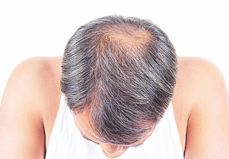 Типы выпадения волос у женщин: диффузное, очаговое, гормональное, андрогенное | компетентно о здоровье на ilive