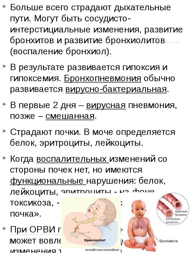 Лечение, профилактика и симптомы гриппа у детей: грудничков и младенцев