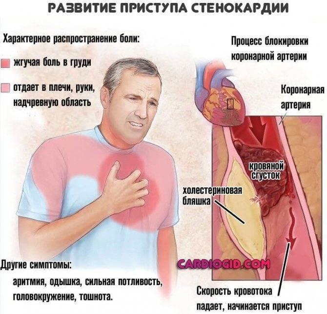 Болит справа в грудной клетке у мужчин и женщин: причины, как лечить