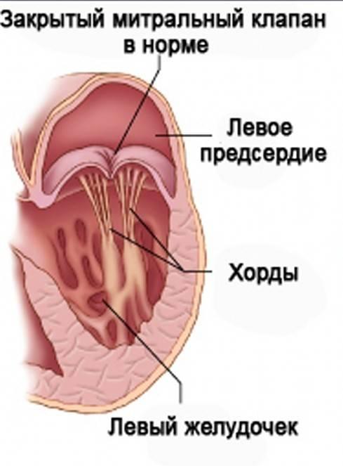 Гипертрофия левого желудочка: симптомы и диагностика в киеве