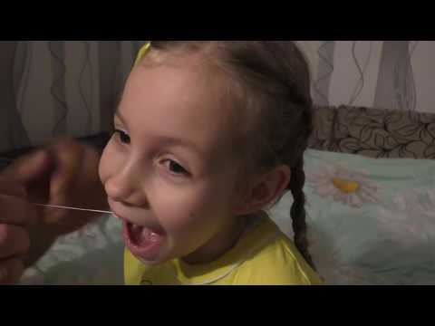 Анестезия при удалении молочных зубов у детей