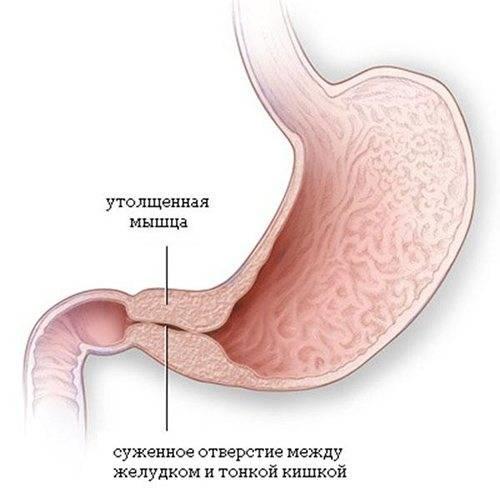 Атрезия ануса и прямой кишки
