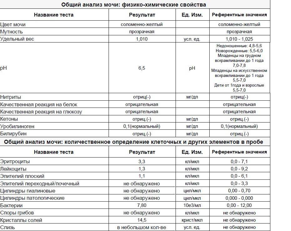 Доктор Комаровский об отклонениях от нормы анализа мочи у ребенка