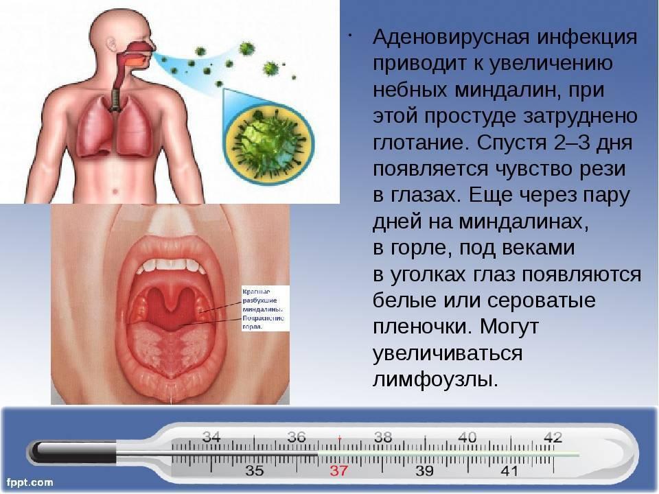 Аденовирусные болезни — большая медицинская энциклопедия