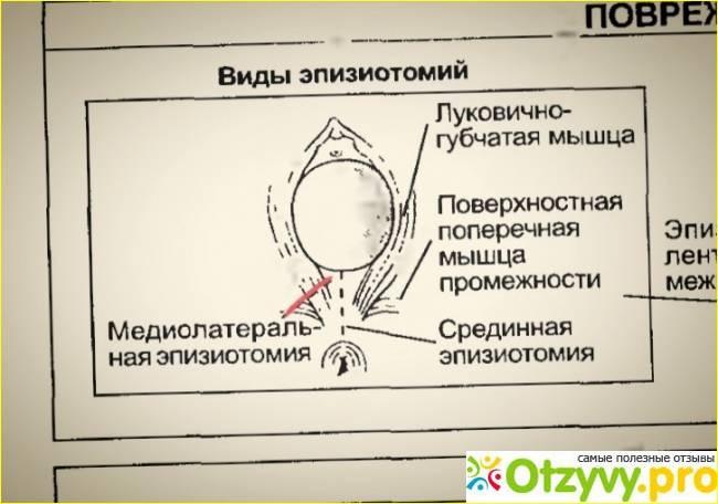 Эпизиотомия, наложение щипцов, экстренное кесарево - оперативная помощь при родах. кесарево сечение, разрез тканей промежности - операции во время родов