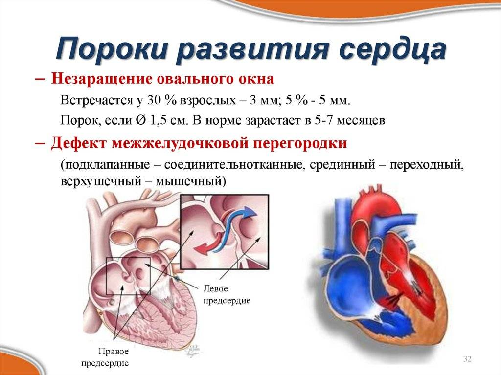 Коррекция врожденного порока сердца