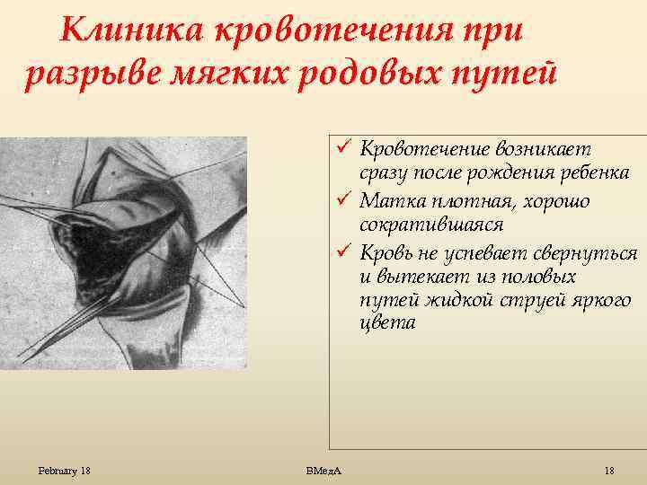 Эпизиотомия, наложение щипцов, экстренное кесарево - оперативная помощь при родах