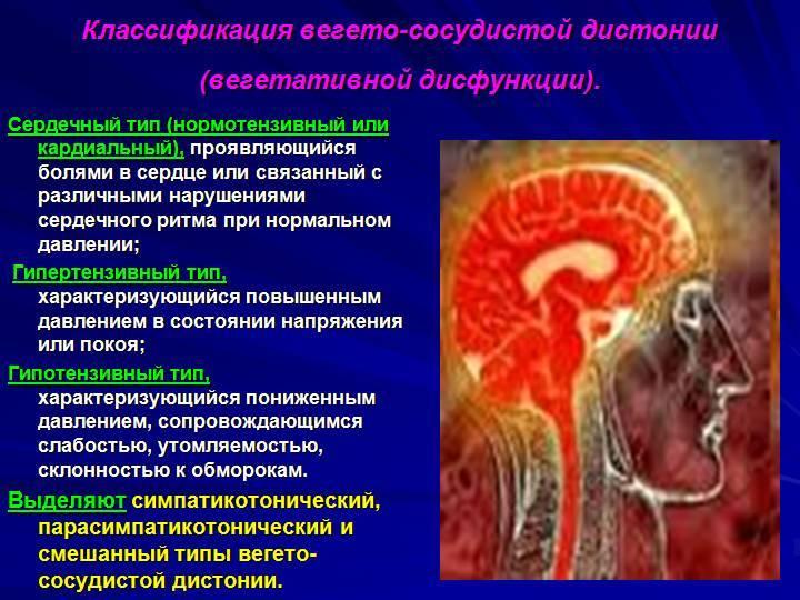 Вегетососудистая дистония: лечение, симптомы и причины