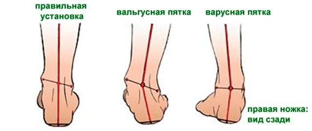 Плоско варусная деформация стопы - причины, симптомы, диагностика и лечение в челябинске и екатеринбурге