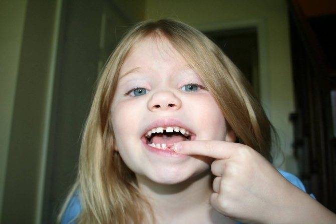 Подпиливание зубов - о процедуре и можно ли выполнить дома
