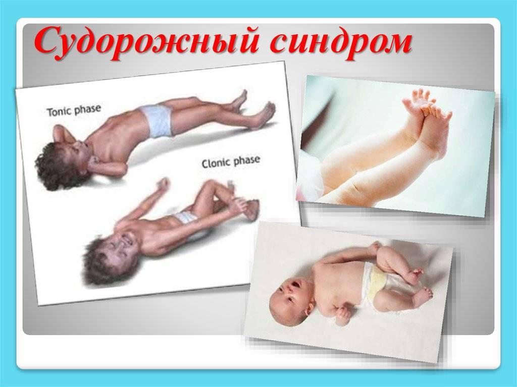 Первые признаки и симптомы эпилепсии у детей