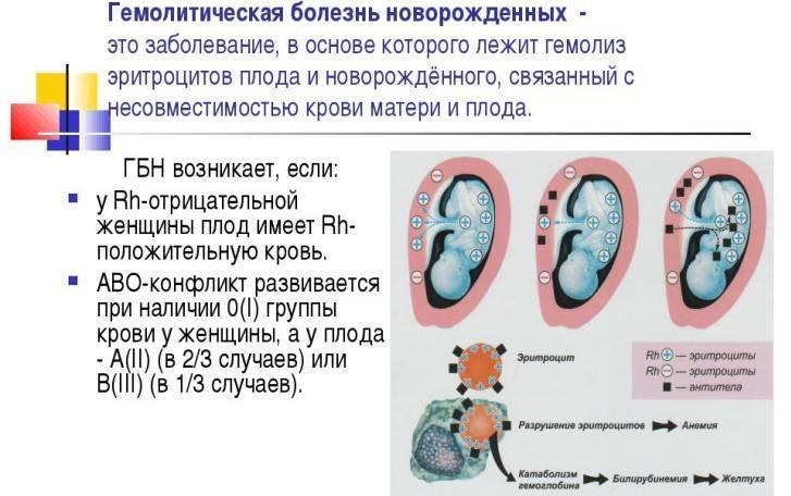 Гемолитическая болезнь плода: причины, симптомы, диагностика и лечение