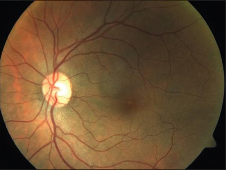 Ангиопатия сетчатки глаза у ребенка - что это, лечение, причины, симптомы