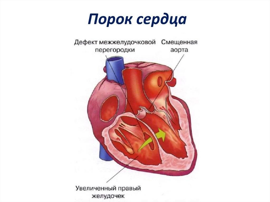 Врожденный порок сердца. причины, симптомы, диагностика и лечение.