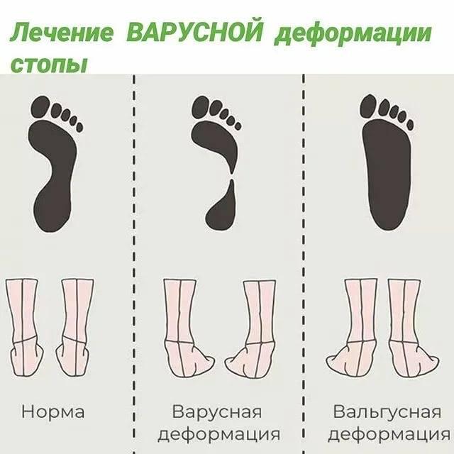 Вальгусная деформация стопы у детей - признаки, причины, симптомы, лечение и профилактика - idoctor.kz