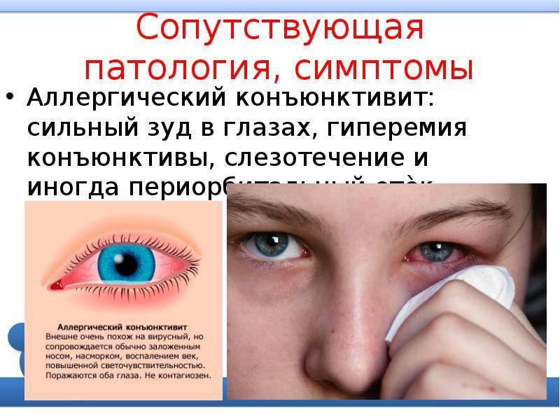 Конъюнктивит у детей: симптомы, лечение, профилактика - энциклопедия ochkov.net