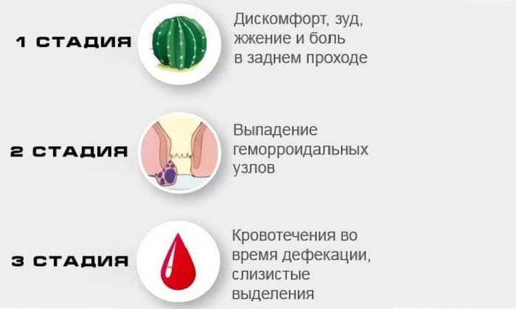 Геморрой: причины, симптомы и современные методы лечения
