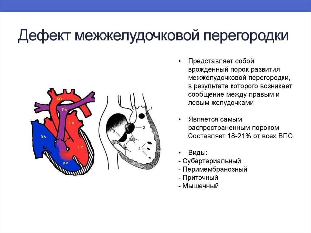 Порок сердца у детей: врожденный и приобретенный, лечение