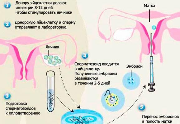 Как решиться на донорские яйцеклетки - статья репродуктивного центра «за рождение»