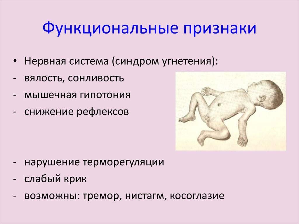 Как определить гипертонус и гипотонус мышц у грудничков