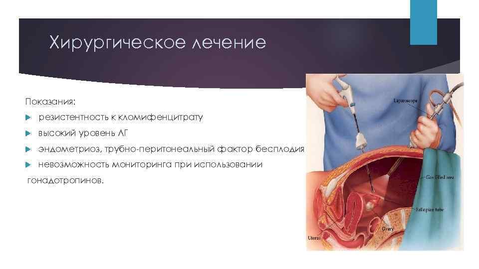 Диагностика и лечение непроходимости маточных труб