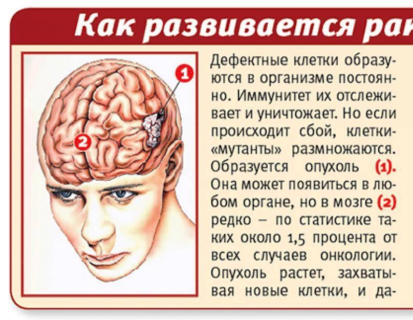 Опухоль лобной доли головного мозга: причины, симптомы, лечение — онлайн-диагностика