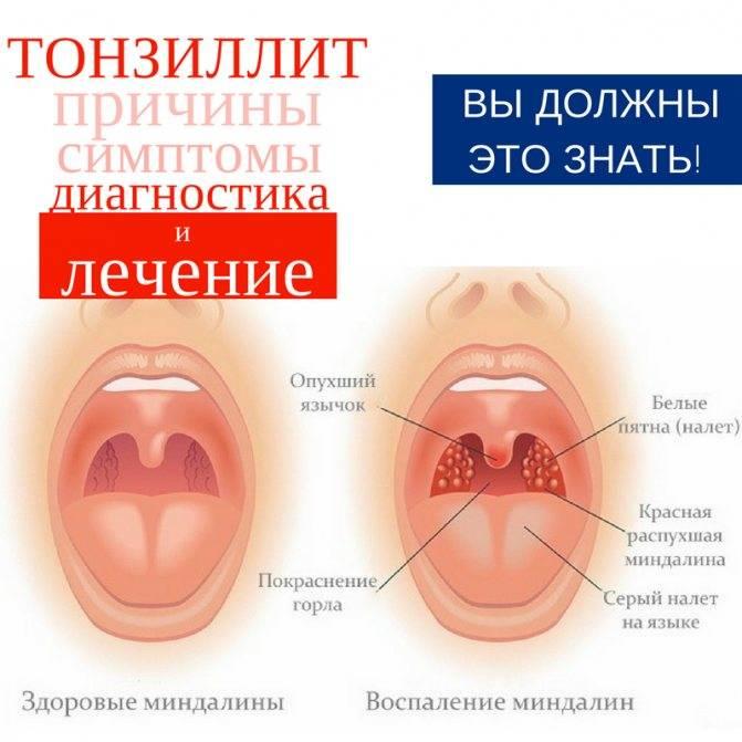 Симптомы и осложнения при прорезывании зубов