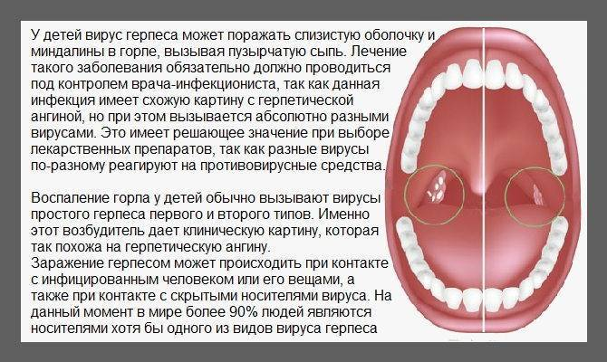 Острый тонзиллит (ангина) у детей, симптомы и лечение