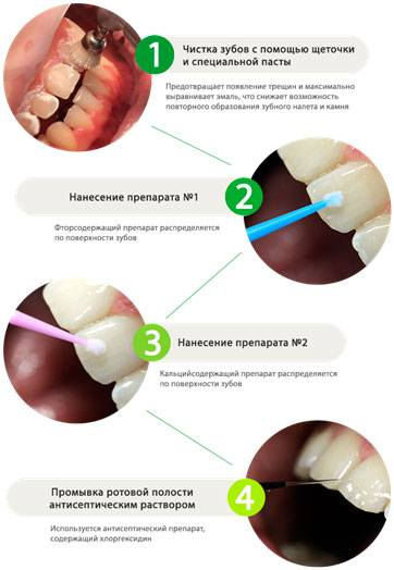 Серебрение зубов у детей – отзывы, фото, плюсы и минусы сафорайд