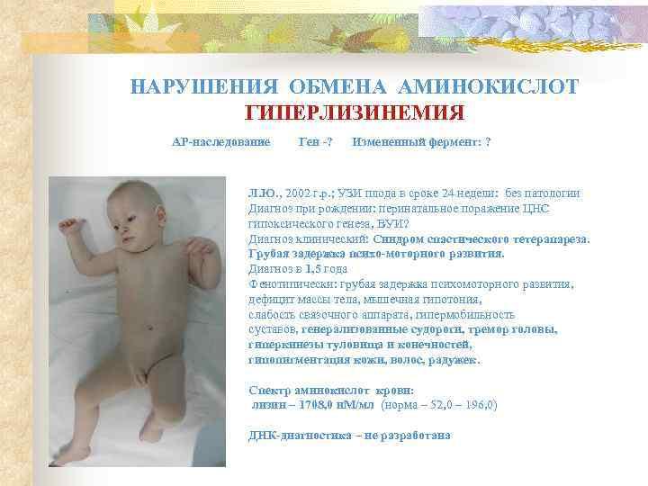 Перинатальная энцефалопатия   ким