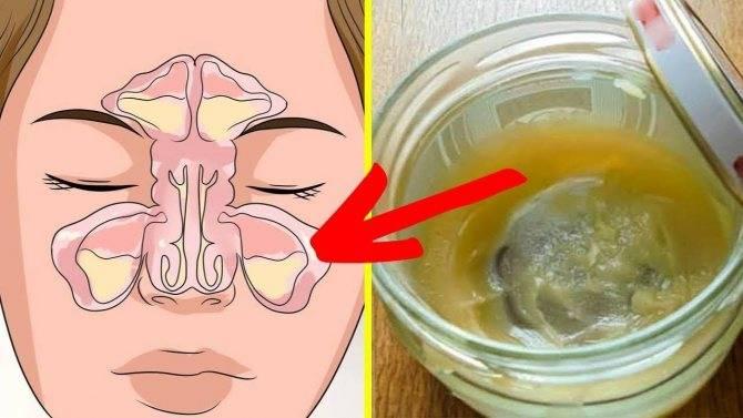 Физиологический ринит у грудничка: причины, симптомы и лечение насморка с помощью аквалор