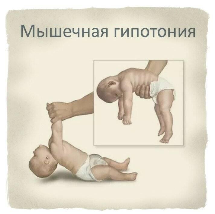 Как снять гипертонус у ребенка: 2 упражнения. повышенный тонус в ручках у ребенка