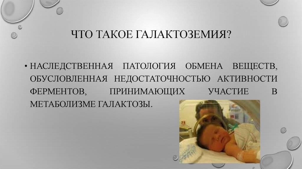 Случай галактоземии у новорожденного ребенка с низкой массой тела