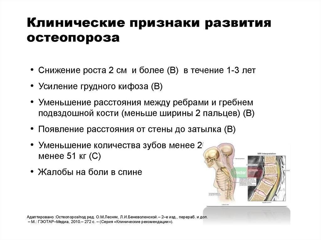 Остеопороз: симптомы, факторы риска, диагностика и лечение заболевания скелета