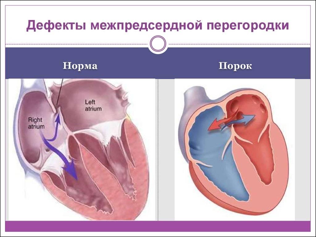 Пролапс митрального клапана сердца, лечение пролапса митрального клапана 1, 2, 3 степени у женщин и мужчин с регургитацией на экг