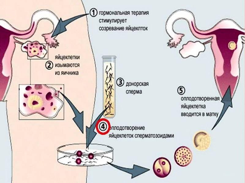 Донорские эмбрионы – эко: результативность, отзывы   перенос донорского эмбриона в клинике «линия жизни», москва