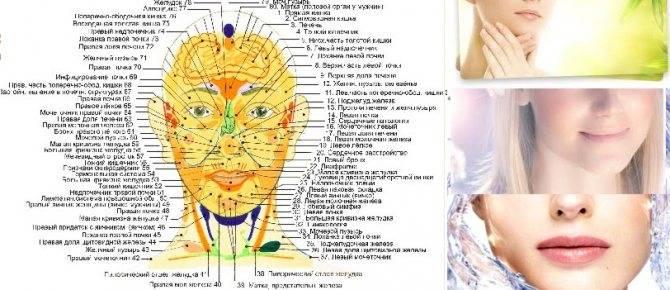 Прыщи (акне) - причины и лечение прыщей на лице, на теле, на лбу, на подбородке, на половых органах, на спине, на ногах и руках