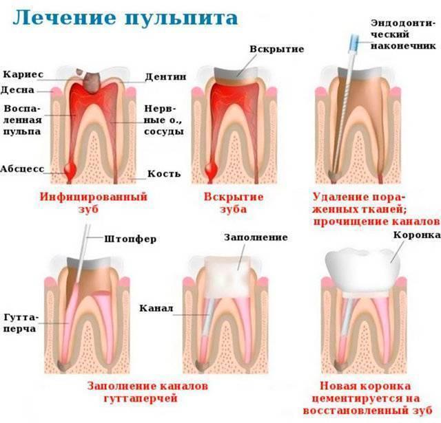 Лечение молочных зубов у детей, цены, методы лечения временных зубов    новадент