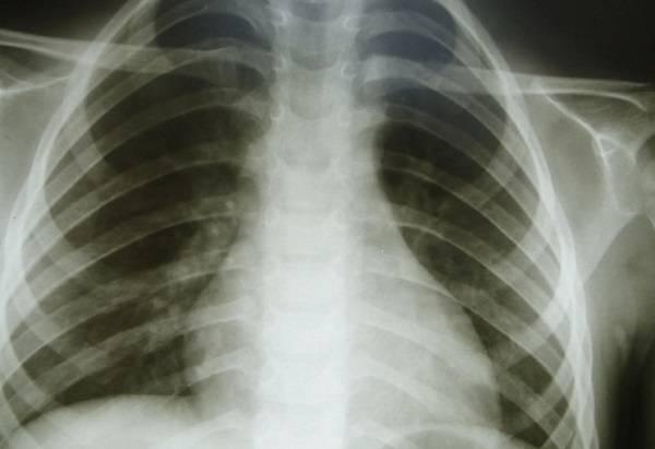 Деформации грудной клетки - лечение, симптомы, причины, диагностика   центр дикуля