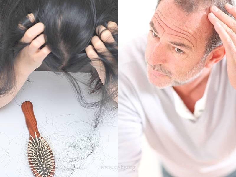 Психосоматика выпадения волос