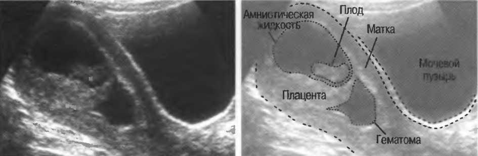 Гематома в матке при беременности: причины возникновения, симптомы, диагностика, лечение