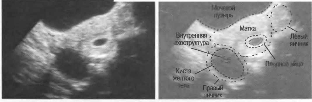 Желтое тело в яичнике - что это такое и стоит ли переживать — клиника isida киев, украина