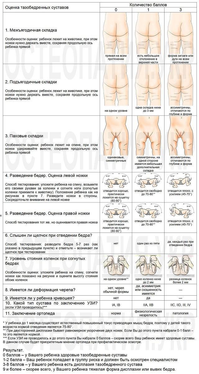 Лечение дисплазии тазобедренных суставов — ladisten