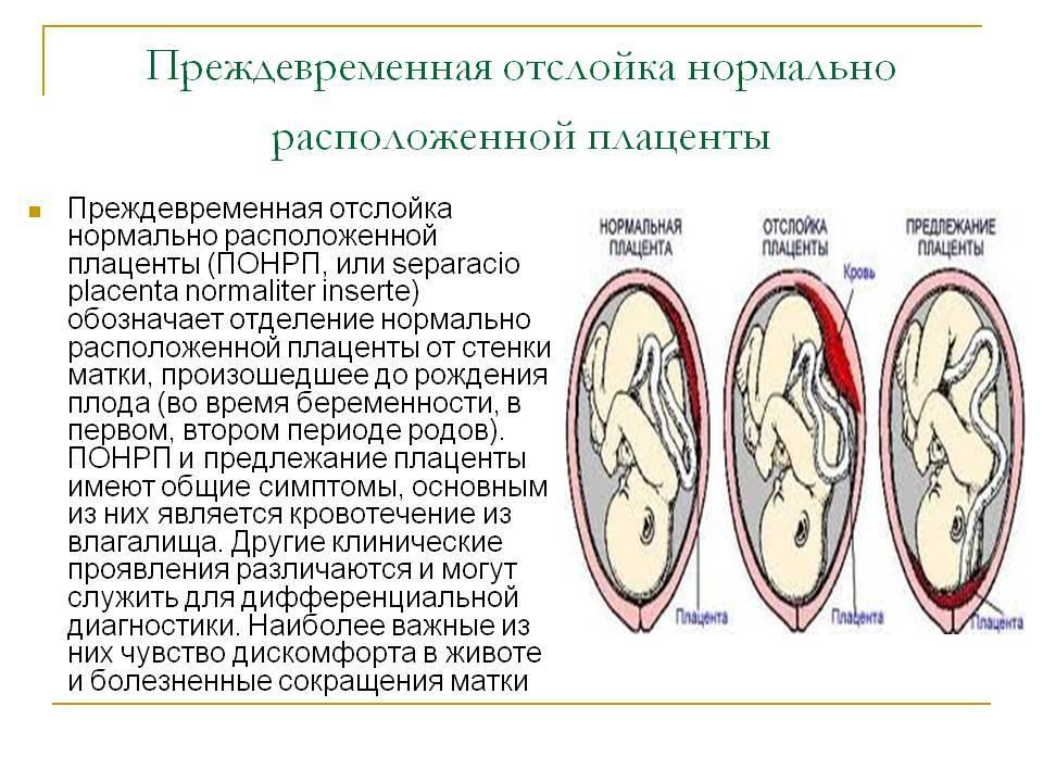 Раннее старение плаценты