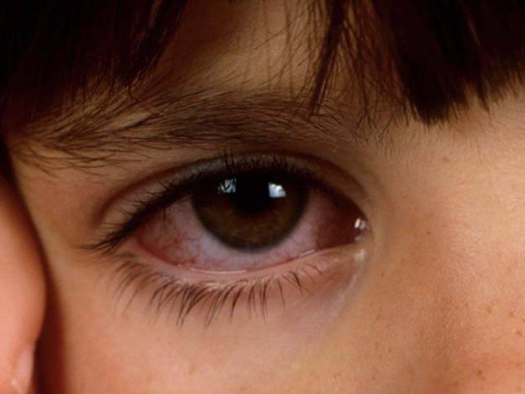 Аллергический конъюнктивит | симптомы и лечение аллергического конъюнктивита | компетентно о здоровье на ilive