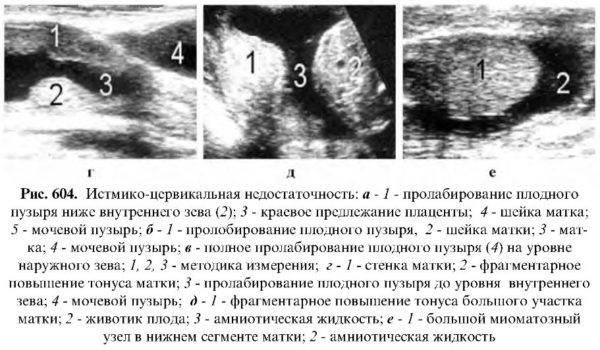 Гипертонус матки во 2 триместр при беременности